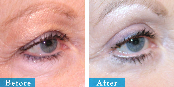 edmonton-cosmetic-surgery-blepharoplasty-12.jpg