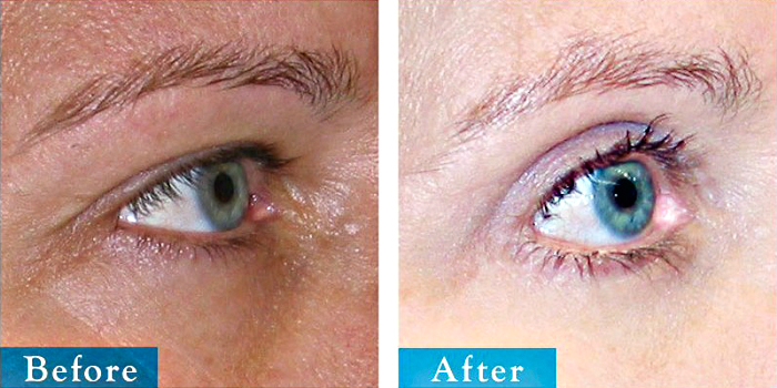 edmonton-cosmetic-surgery-blepharoplasty-13.jpg
