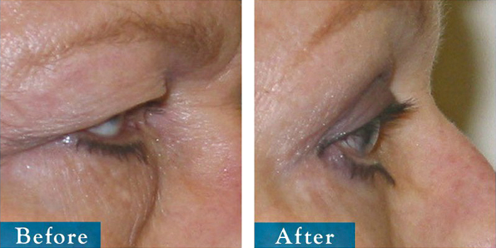 edmonton-cosmetic-surgery-blepharoplasty-17.jpg