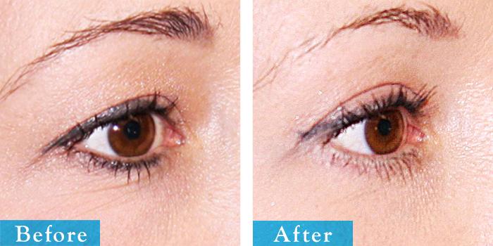 edmonton-cosmetic-surgery-blepharoplasty-2.jpg