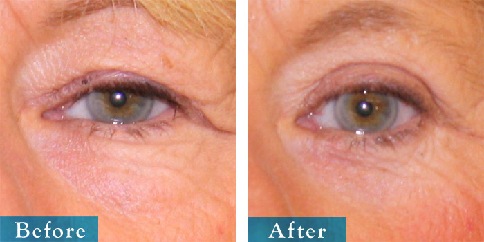edmonton-cosmetic-surgery-blepharoplasty-7.jpg