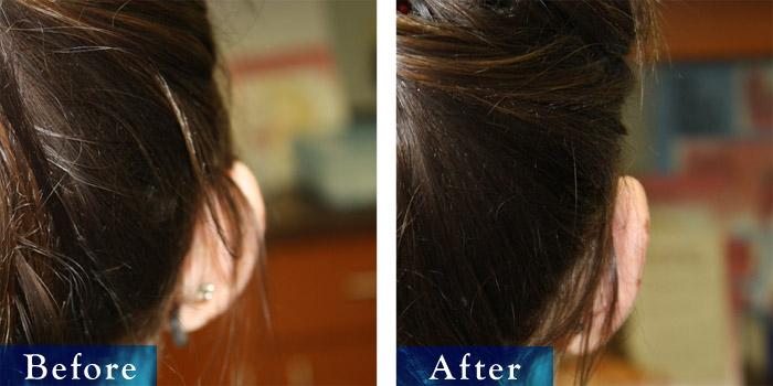 edmonton-cosmetic-surgery-otoplasty-2.jpg