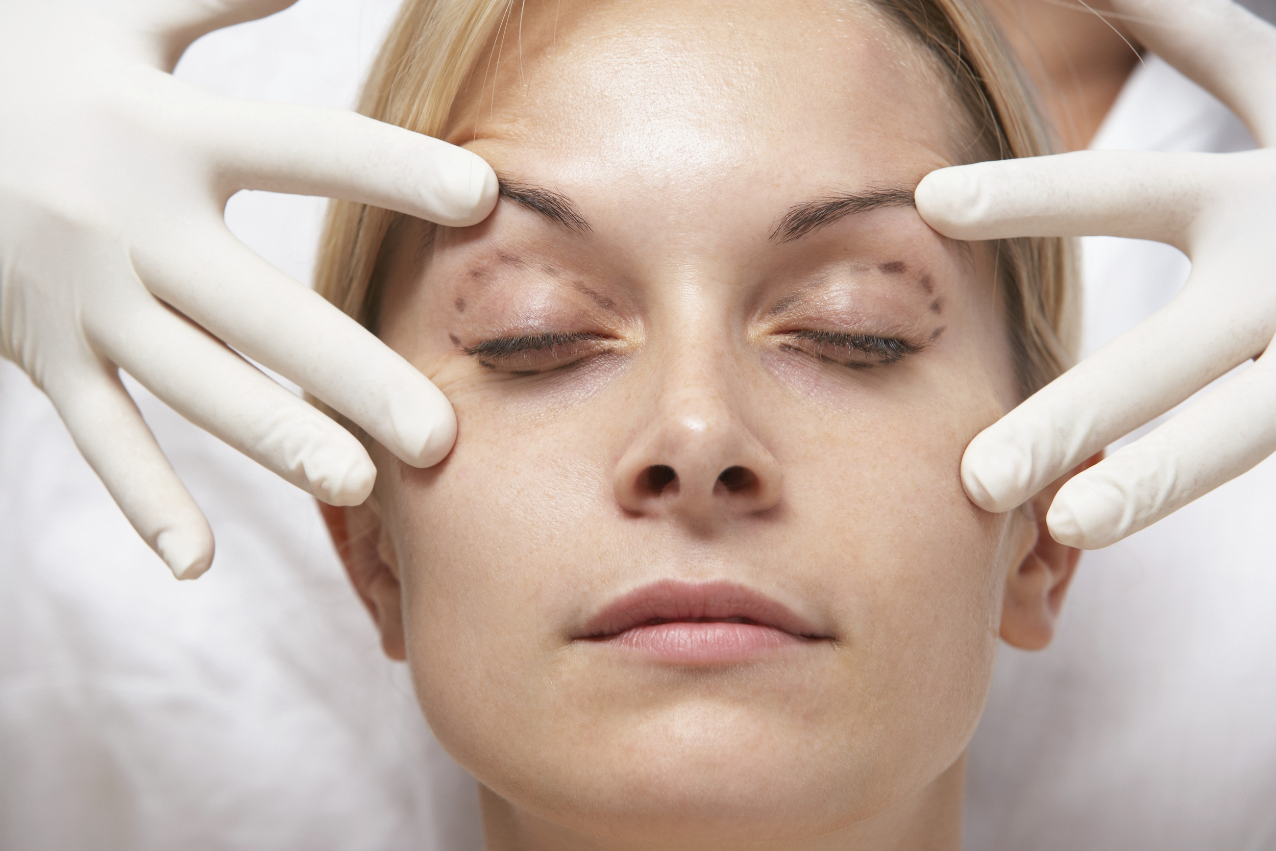 Click to see a selection of our Before and After Eyelid Photos.