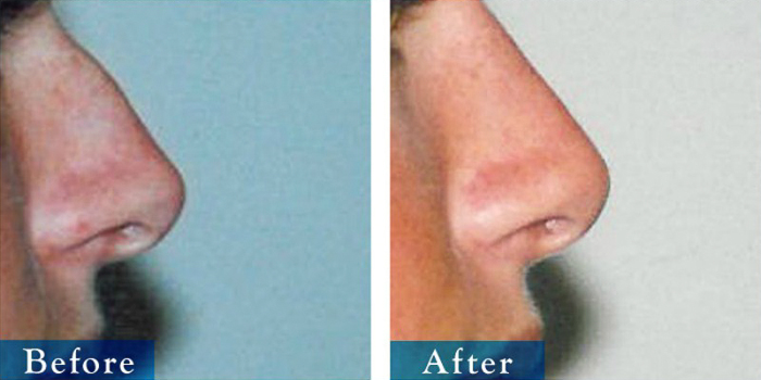edmonton-cosmetic-surgery-rhino-20.jpg