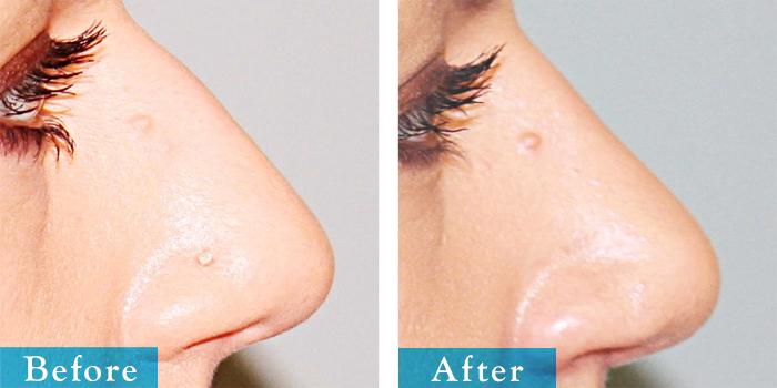 edmonton-cosmetic-surgery-rhino-4.jpg
