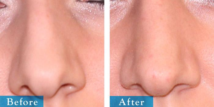 edmonton-cosmetic-surgery-rhino-8.jpg
