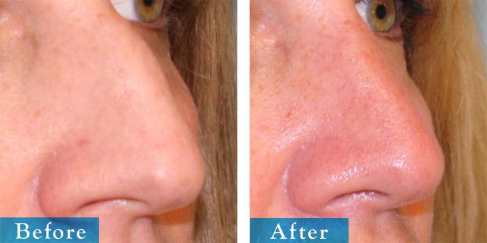 edmonton-cosmetic-surgery-rhino-11.jpg