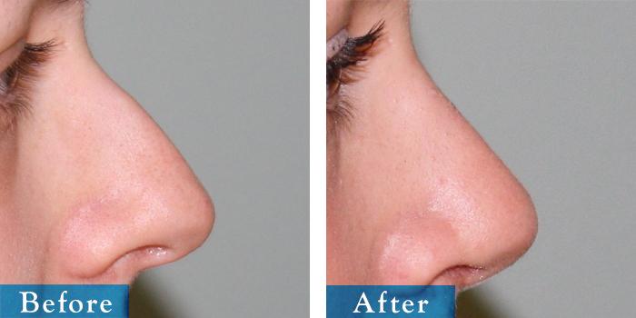 edmonton-cosmetic-surgery-rhino-26.jpg