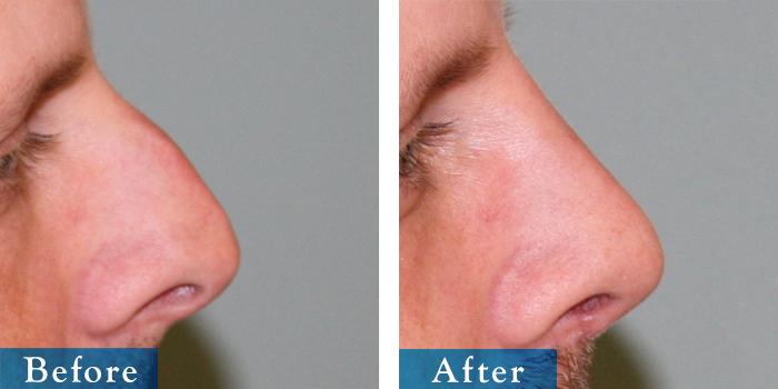 edmonton-cosmetic-surgery-rhino-27.jpg