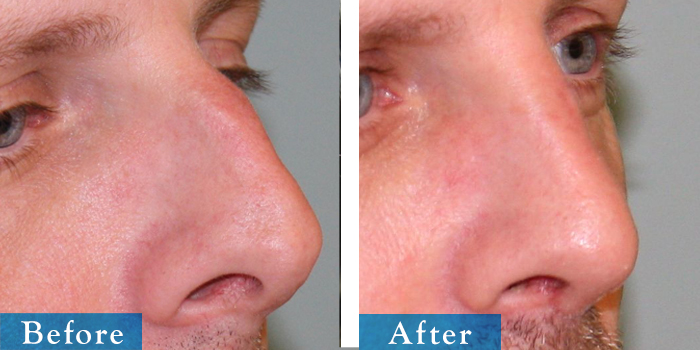 edmonton-cosmetic-surgery-rhino-32.jpg
