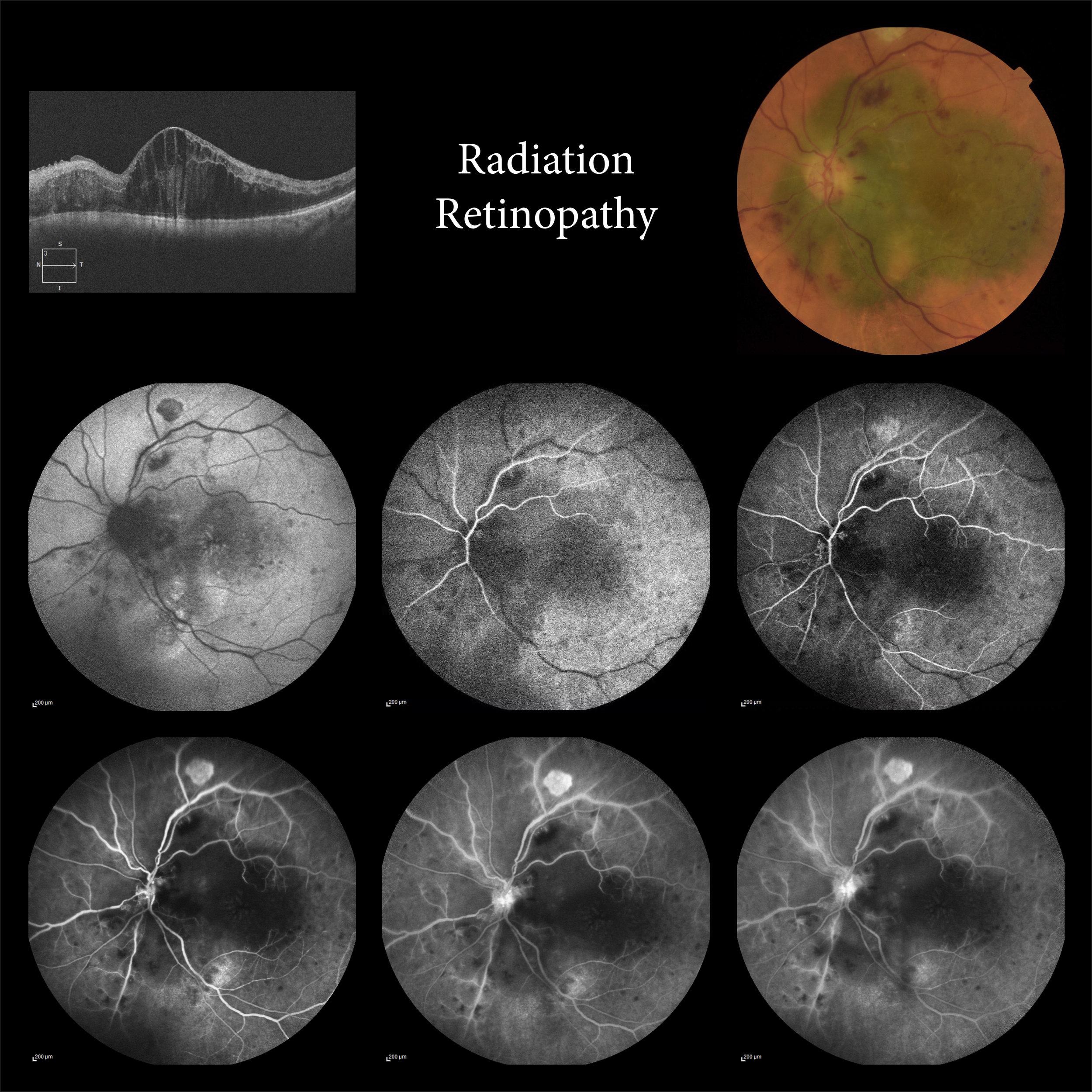 Radiation Retinopathy.jpg