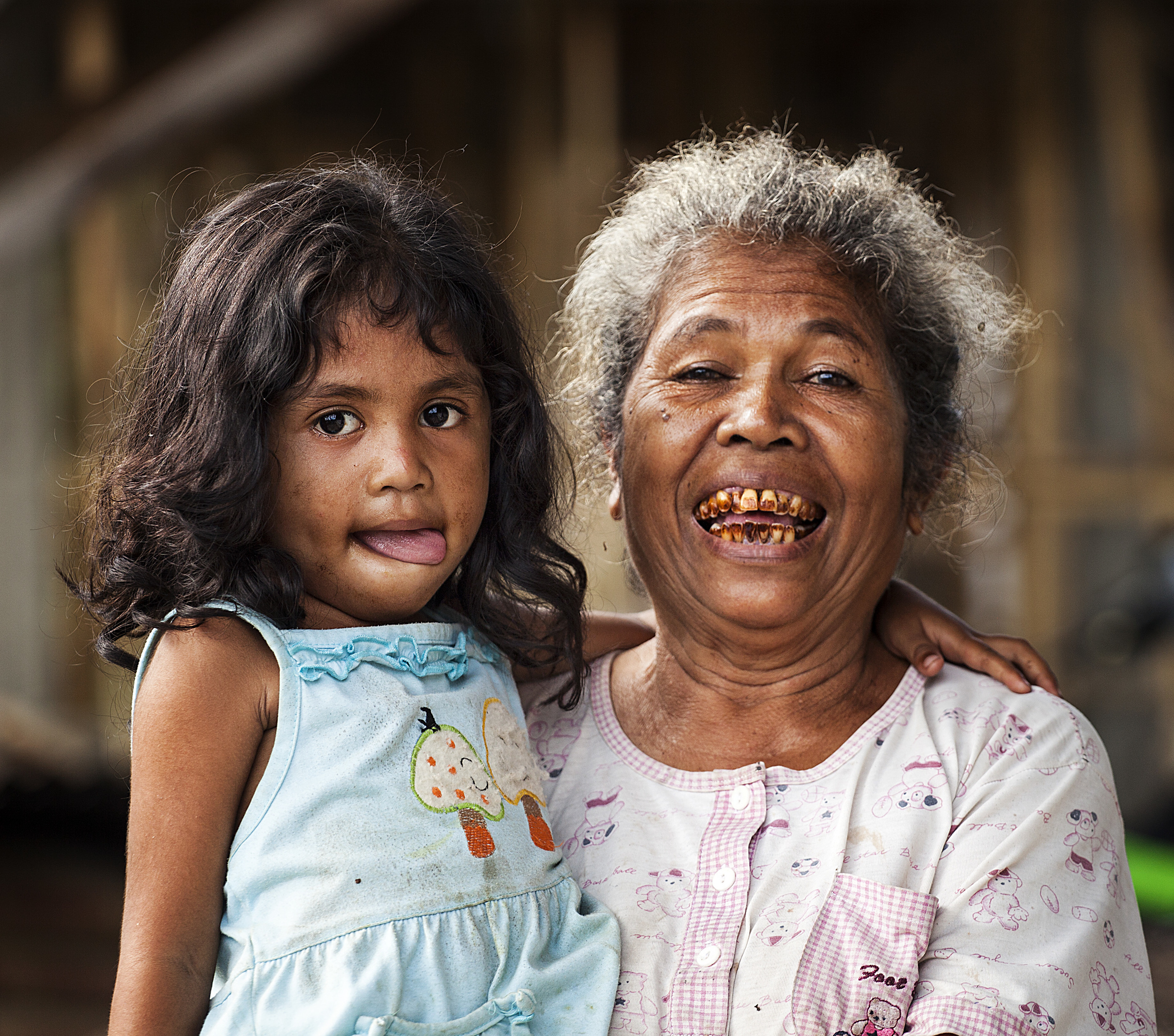 This is what happens to your teeth from a lifetime of betel nut chewing