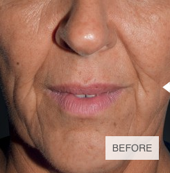 Ellanase, the Natural Filler used at Harpal Clinic in London