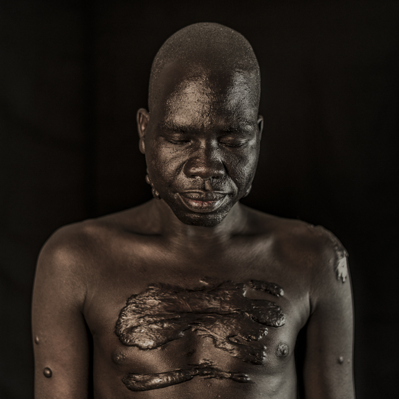 Joseph still bears marks of South Sudan's long and terrible civil war on his body -Photo by Tim Coleman.