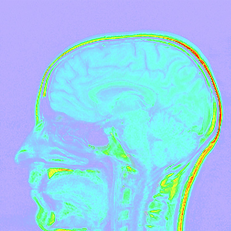 Izing_M_Brain8.jpg