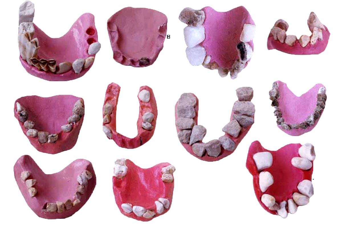 yourcontribution_teeth.jpg