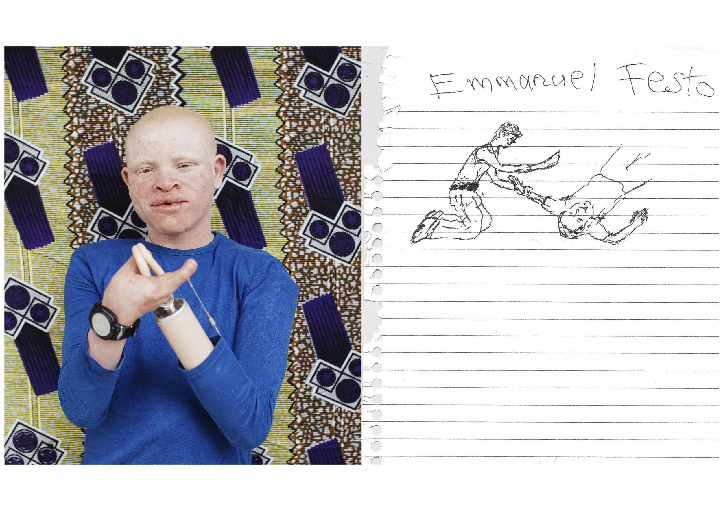Emmanuel Festo      A drawing of his attack.