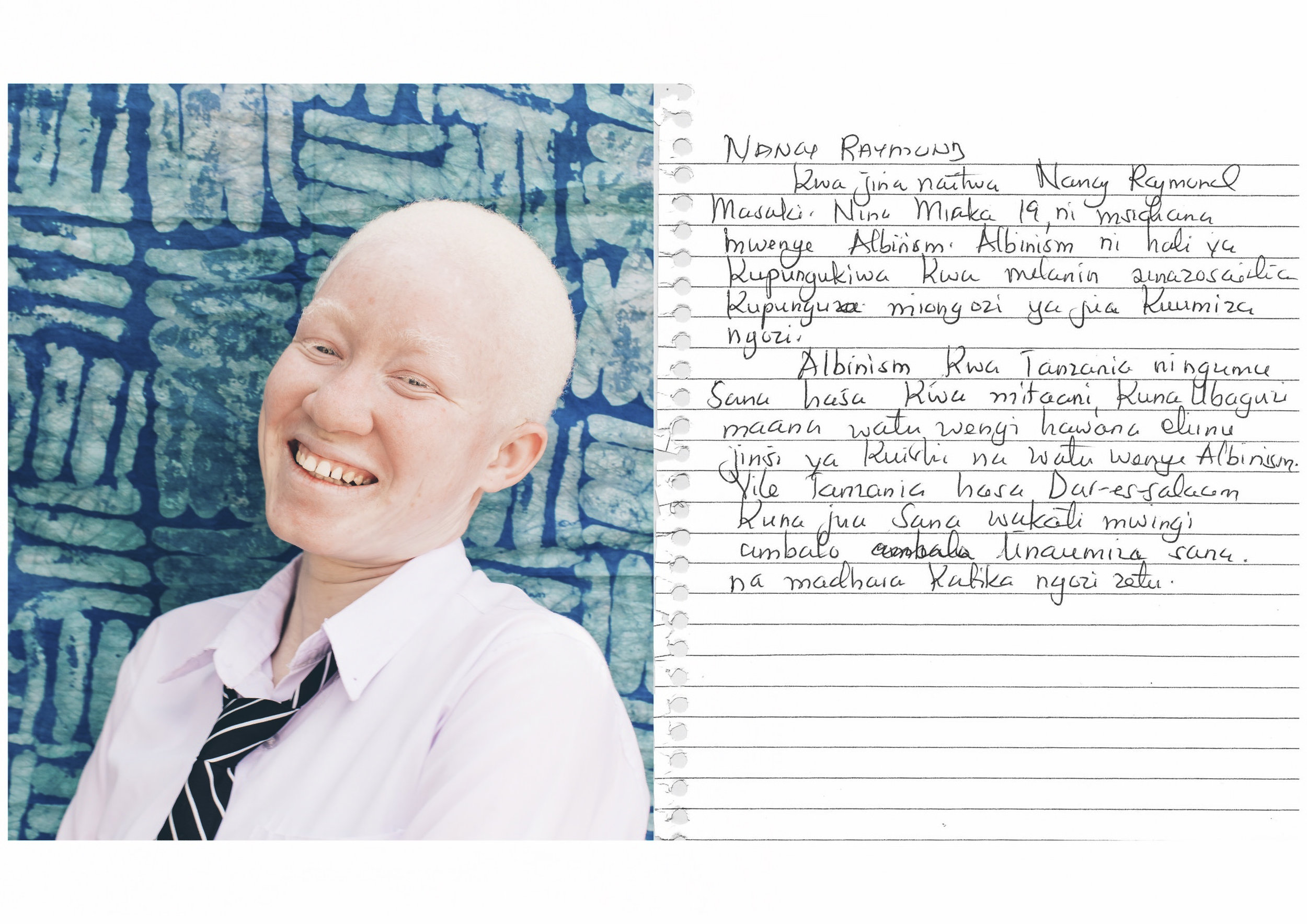 My name is Nancy Raymond Masaki. I am 19 years old. I am a young girl with albinism. Albinism is a condition of lacking melanin that prevents sun rays from affecting the skin.    In Tanzania, albinism is still a challenge especially in the streets, where there is a lot of stigma because many people do not have an education on how to live with people with albinism.    Also in Tanzania, especially in Dar es Salaam, for the most part of the year it is very hot. The heat troubles us and has severe effects on our skin.