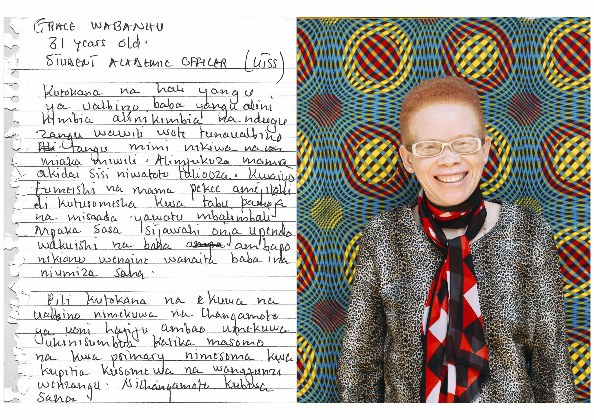 Grace Wabanhu      31 years old      Student Academic Officer - UTSS     Because of my albinism my father abandoned us - me and my two siblings, who are all people with albinism. It happened when I was two years old. He chased away our mother and claimed that we were rotten children. So we lived alone and my mother did her best to make sure we were able to obtain an education, and sometimes she received help from others. I do not know what a fathers love feels like and I get emotional when I see others have a male figure in their lives to call fathers.    Second, due to my albinism condition I have a challenge of poor eyesight which was a major setback in my studies. I completed a degree in primary education through the help of other students who read materials out loud for me and would transcribe from the blackboard and books. It is still a very big challenge in my life.