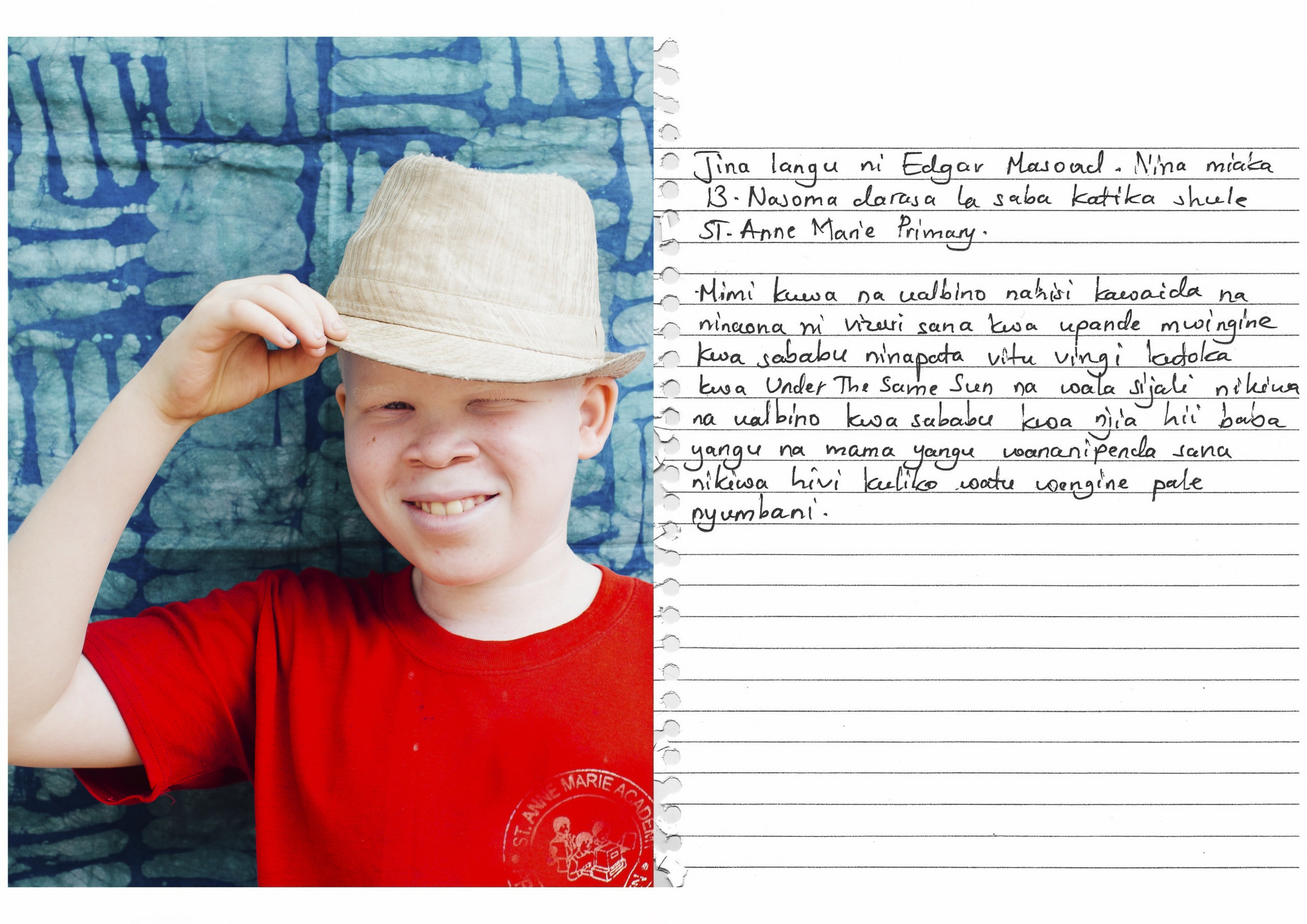 My name is Edgar Masoud. I am 13 years old. I am in standard 7 at St. Anne Marie Primary School.    For me to have albinism is just a normal feeling, and on the other part I see it as a good thing because I get much support from Under the Same Sun. Likewise, I don't feel bad to have albinism because through this condition my parents love me more than anybody else at home.