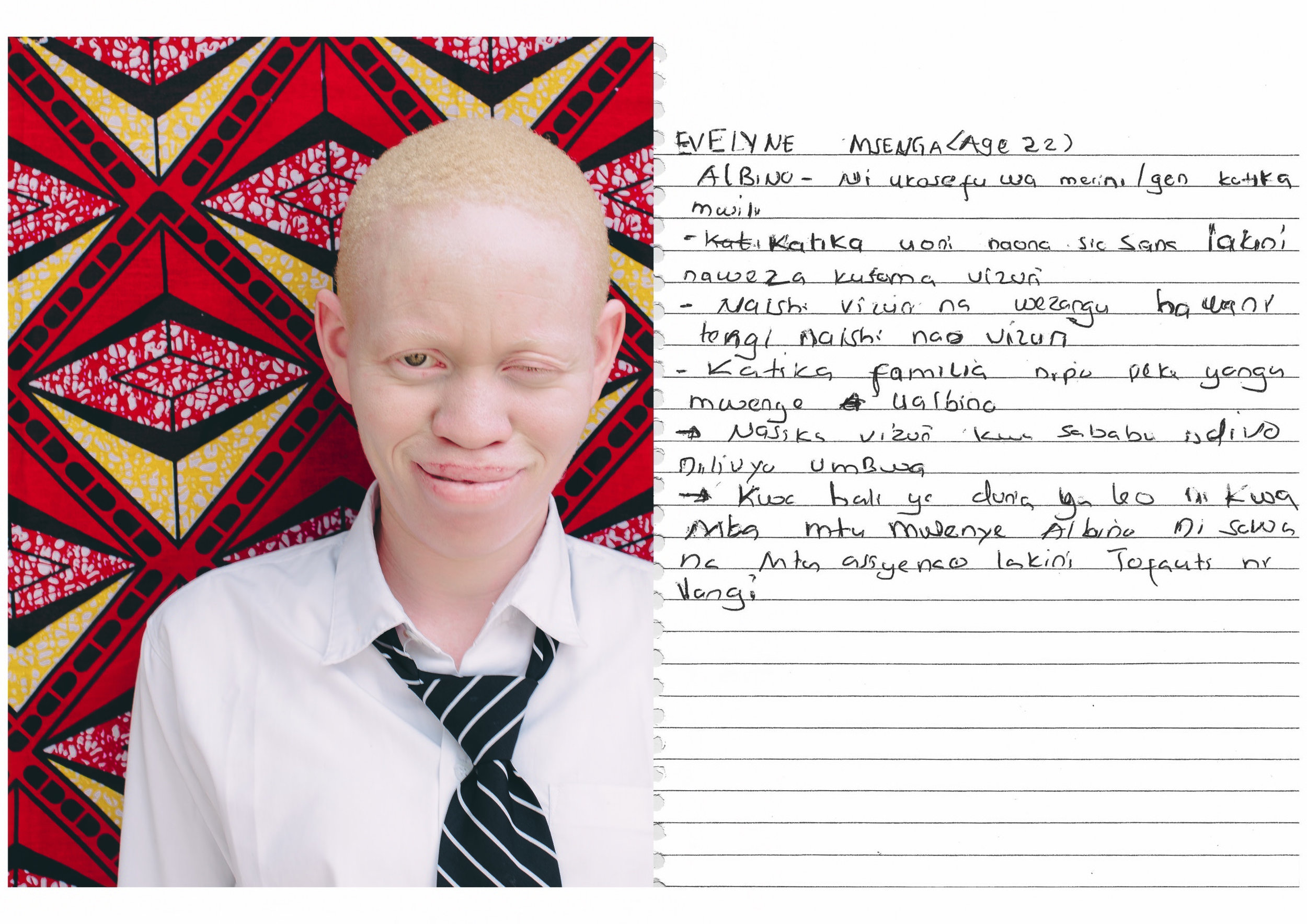 Evelyne Msenga (22 years old)    I am in Form 6 at St. Anne Marie    - Albinism, a condition whereby one lacks melanin in the body.    - I can see, though not very clearly, but I can ready very well.    - I live very well with my schoolmates, they do not tease me.    - I am in the only person in my family who has albinism.    - I feel good to be this way, because this is the way God created me.    - In today's world, people with albinism are considered unequal with other people who do not have albinism, the situation is still challenging.