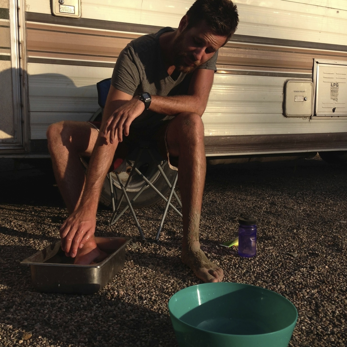 Cameron putting his foot in scorching hot water to deal with a stingray wound.