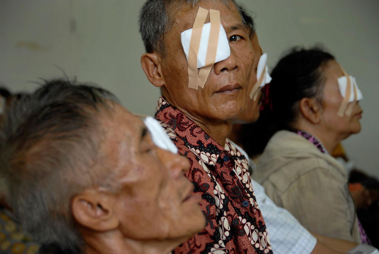 Eye Surgery Camps, Sumatra, Indonesia
