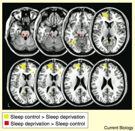 sleep Control.jpeg