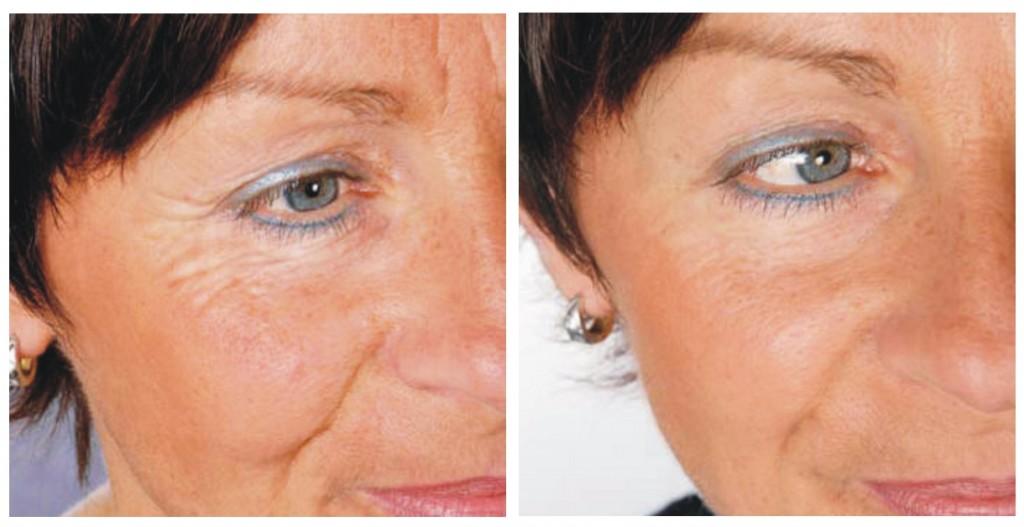laser-treatment-skin-tightening