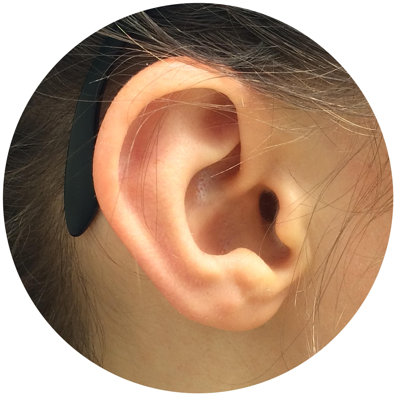 Leigh Ear.jpg