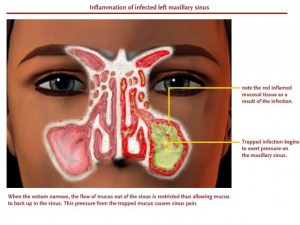 InflammationInfectionMaxillaryLarge
