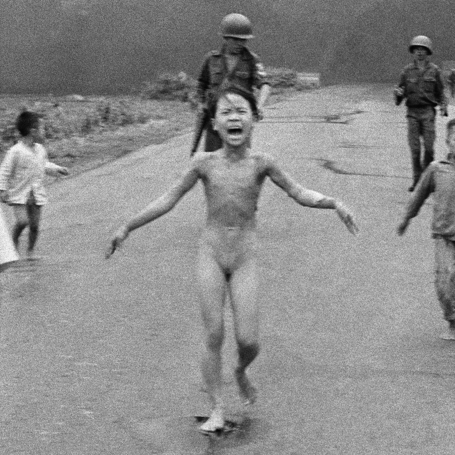 """Burned by napalm  dropped by our """"allies"""" in Vietnam. Where is the memorial in Washington for millions of  Vietnamese  dead?"""