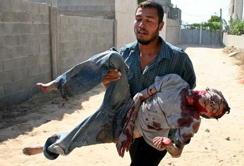 """This is called """"collateral damage"""". That and similar euphemisms allow us to keep our distance from humanitarian catastrophes."""