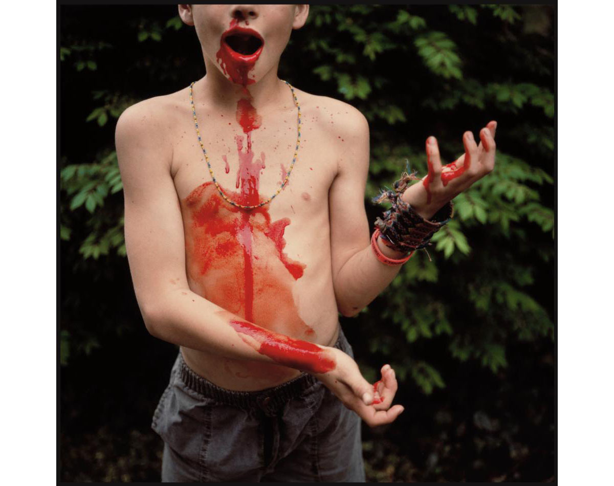 © Sally Mann.  Bloody Nose, 1991.  Silver dye-bleach print. Private collection