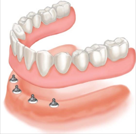 Implant-Full-Lower-Denture 560pix.jpg