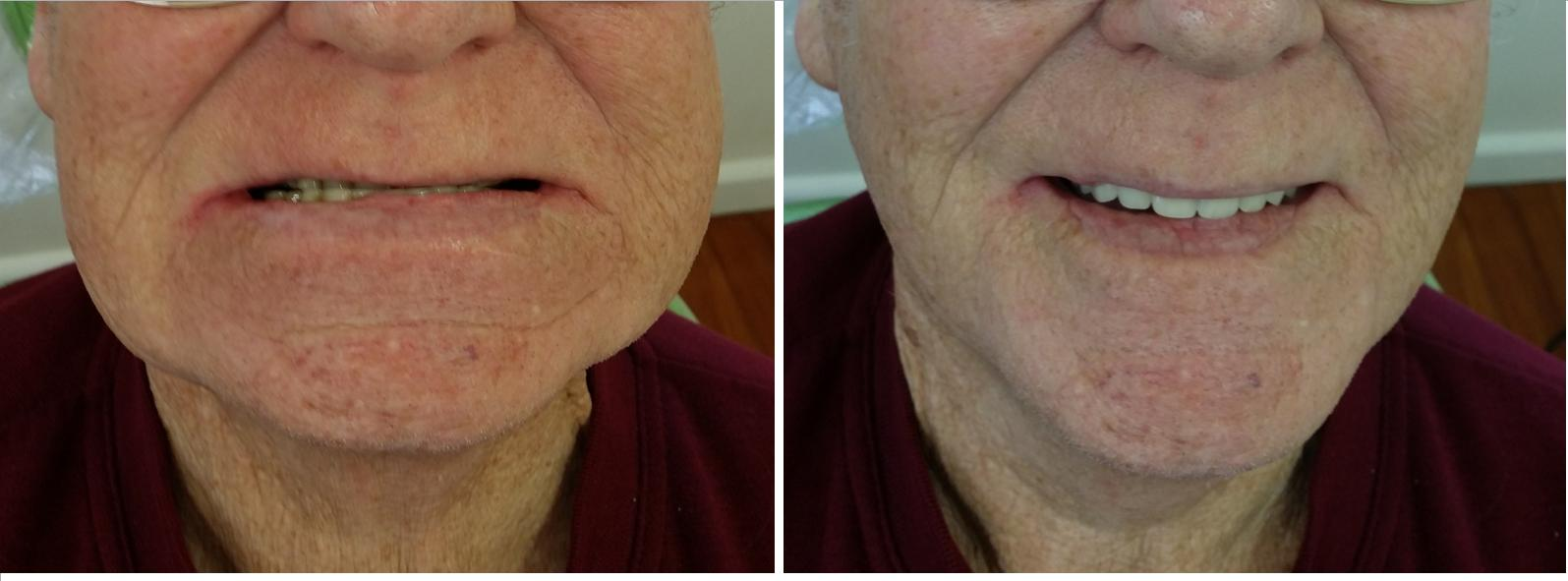 Faceover with new dentures