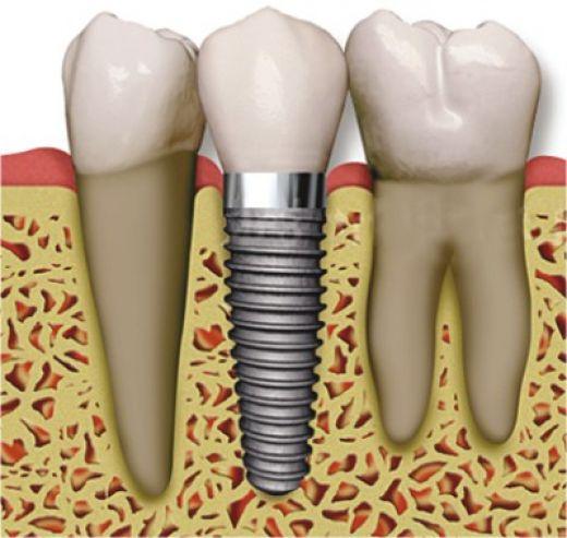 dental_implant_01.jpg