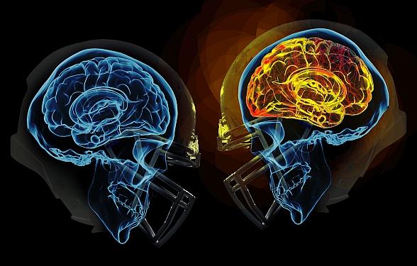 Football-Head-Injuries_Future-Football-Helmets_NFL-CTE-Injury.jpg