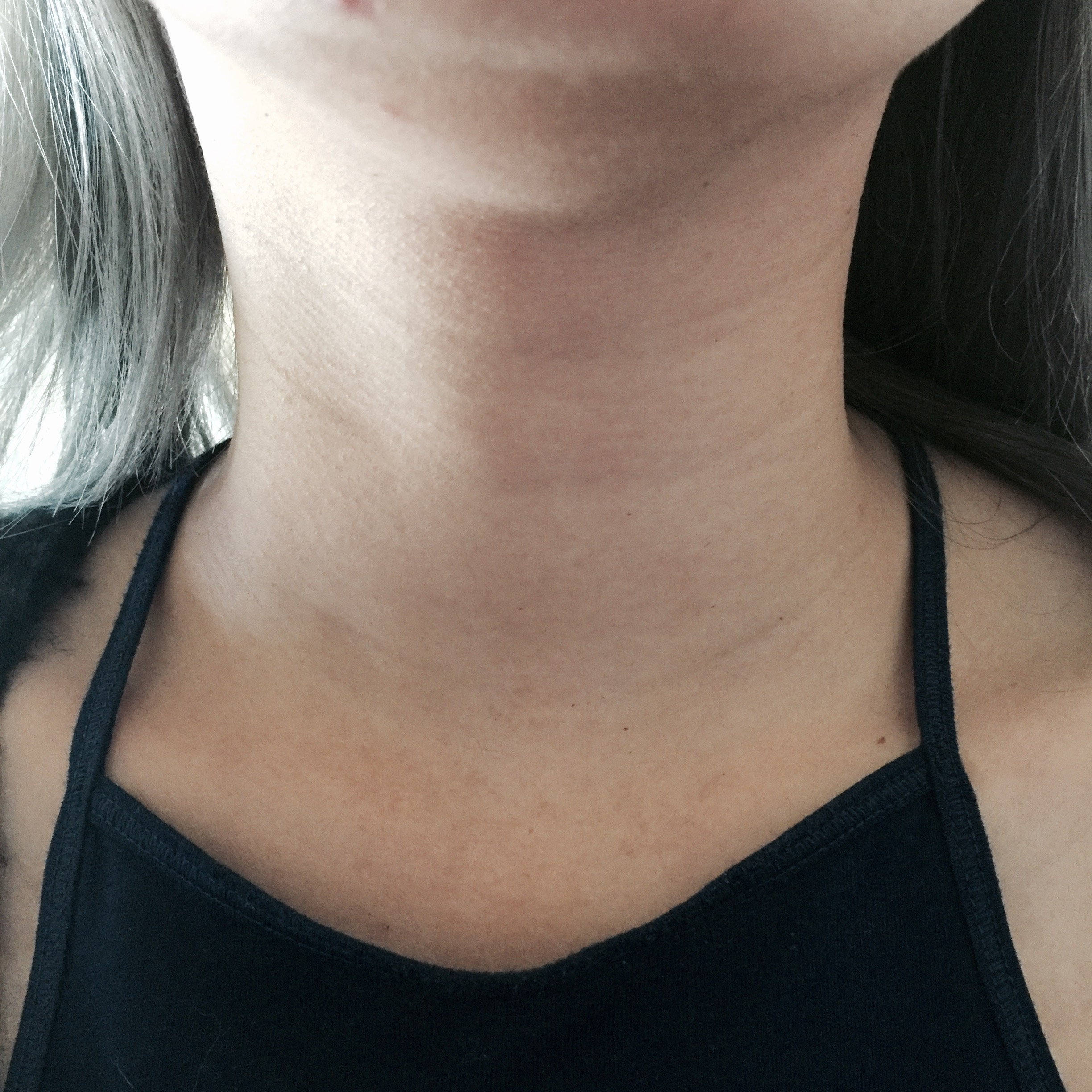 AFTER THE PATCH. My neck is slightly brighter, wrinkles aren't as defined as before.