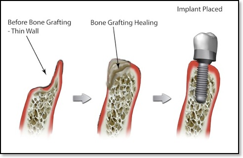 Dental bone graft placed to aid with implant procedure.  Photo Credit:  www.millbraedental.com