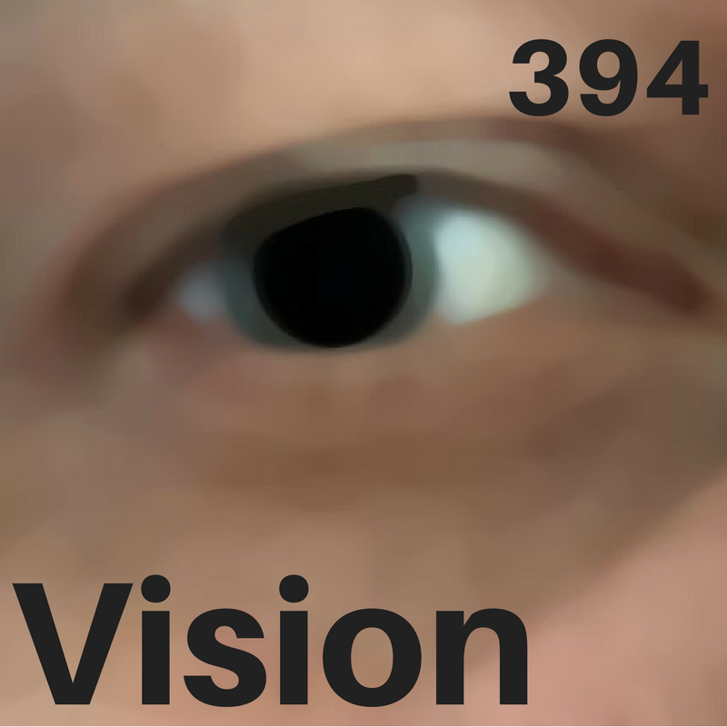 394 - Vision