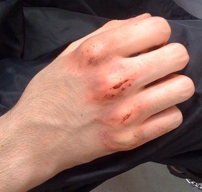 SPFX makeup - scratched Knuckles