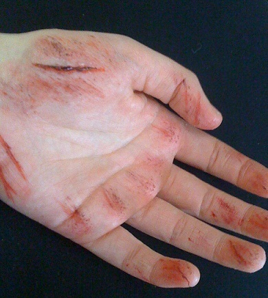 SPFX makeup - Grazed hand