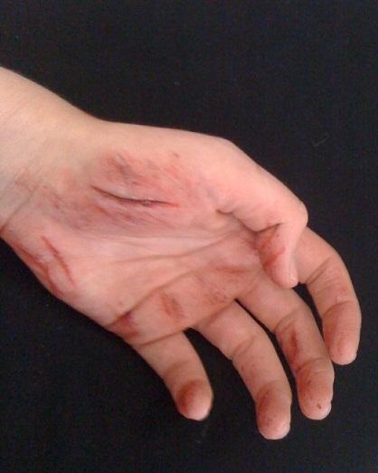 special effect makeup - Grazed Hand