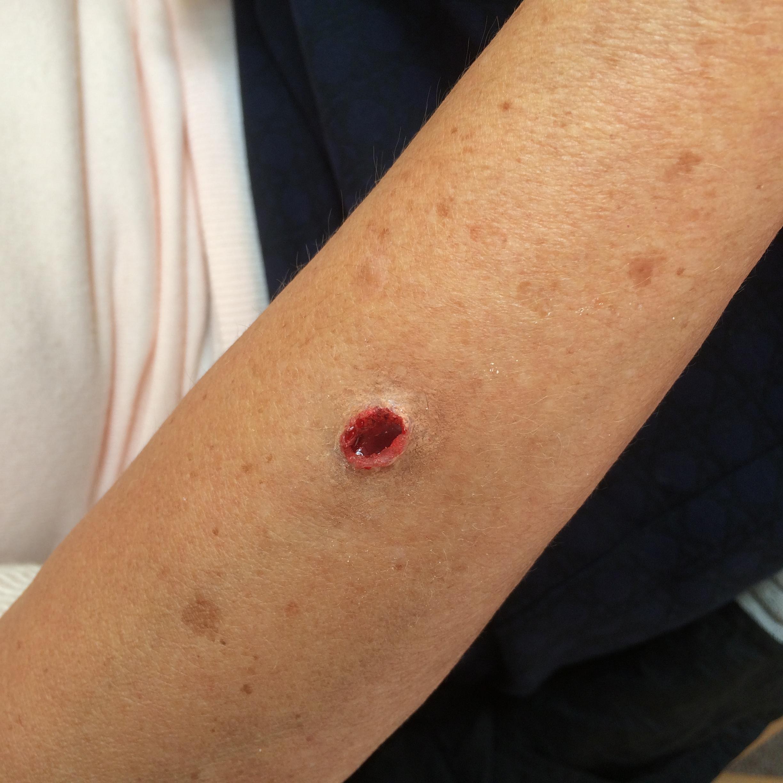 spfx wound makeup