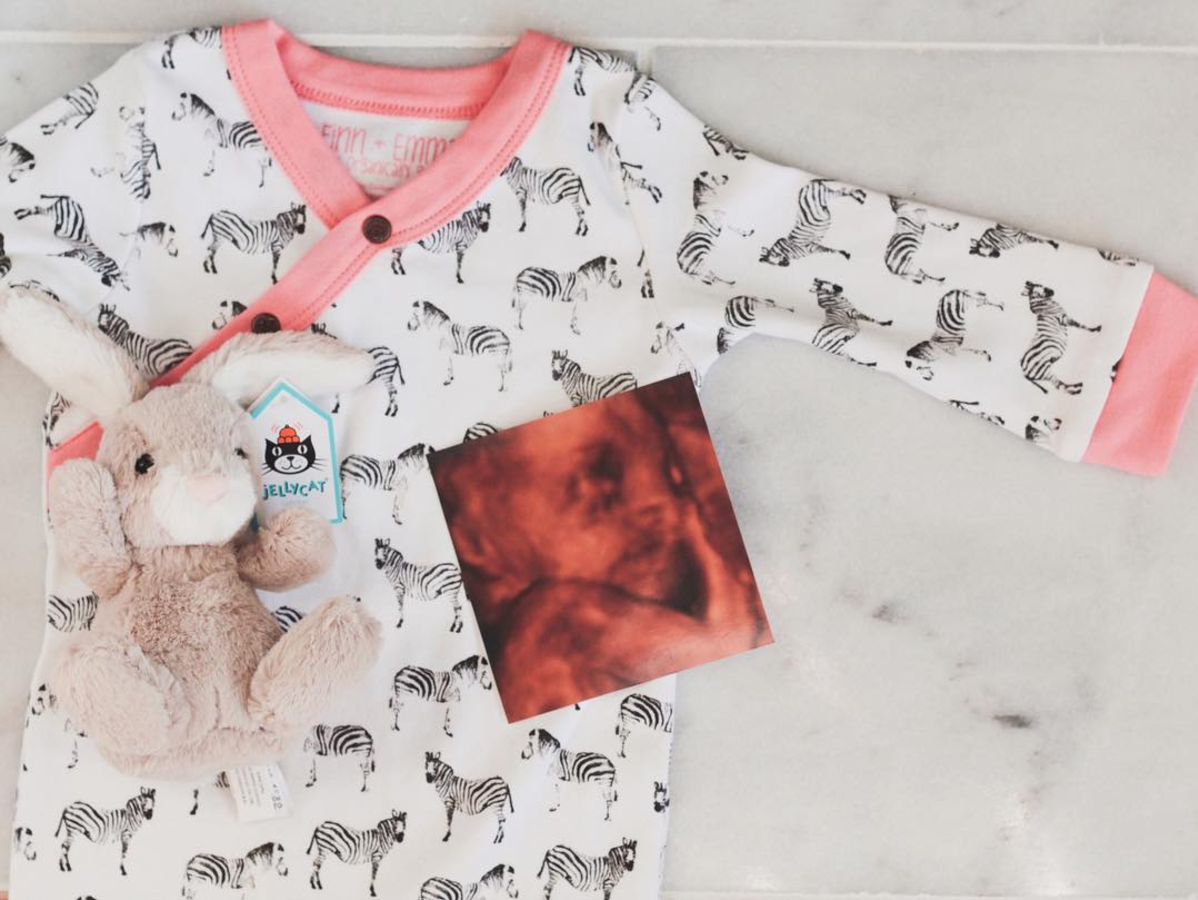 baby girl 3D ultrasound