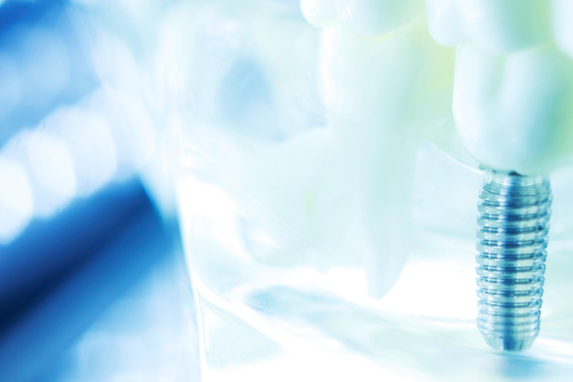 Implantat-getragener Zahnersatz -