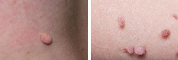 Skin tags.jpg