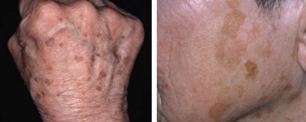 age spot treatment pigmentation