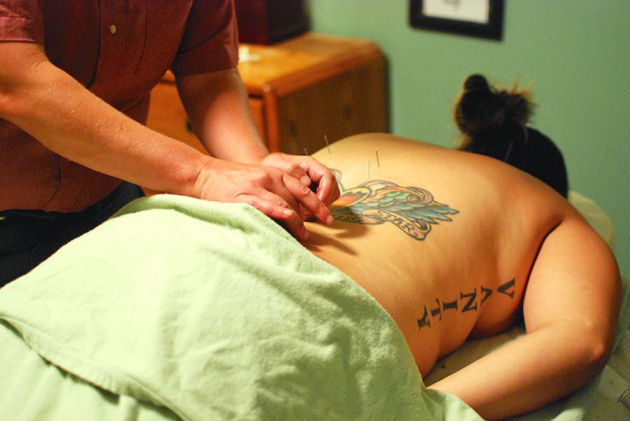 Client receiving acupuncture